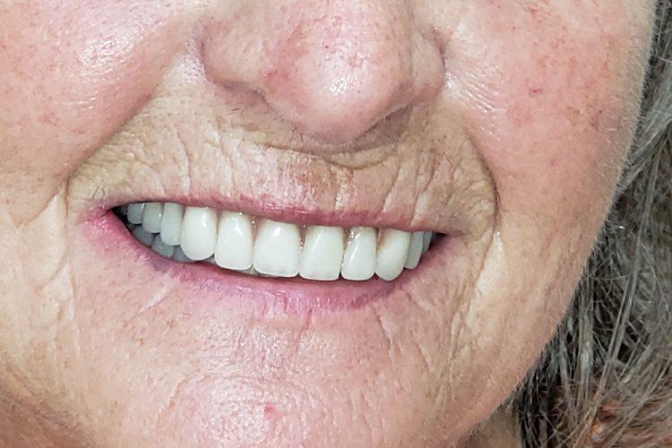 dentist Rathdrum, ID